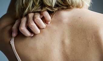 woman experiencing stress rash due to excessive stress exposure